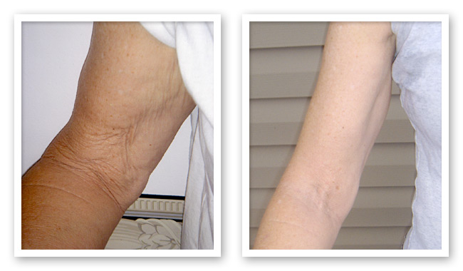Toned Arms Before And After Sun damaged arms before andToned Arms Women Before After